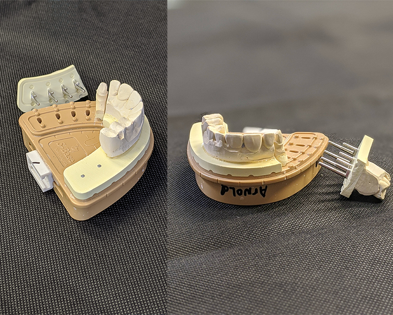 Tooth Model System at Thomson Dental Laboratory in Tyler, TX